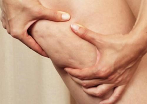 Celulitis en los muslos