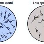 Oligospermia, causas y consecuencias