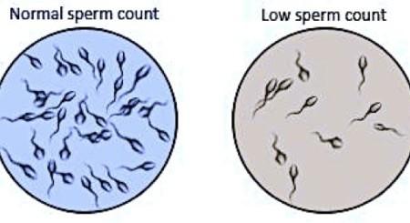 esterilidad masculina por factor espermático -oligozoospermia