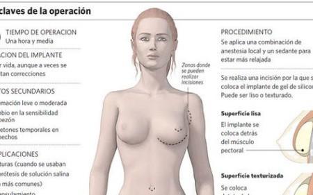 ¿Son seguros los implantes mamarios?
