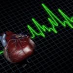 Conceptos básicos sobre el infarto de miocardio