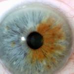 ¿Qué es la iridología?