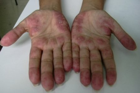 Casos de Lupus aún en España