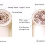 Osteoporosis, qué es y cómo prevenirla