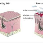 Qué es la psoriasis y como tratarla