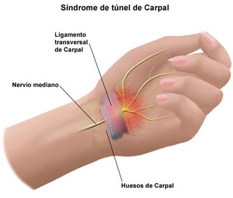 sindrome túnel carpiano